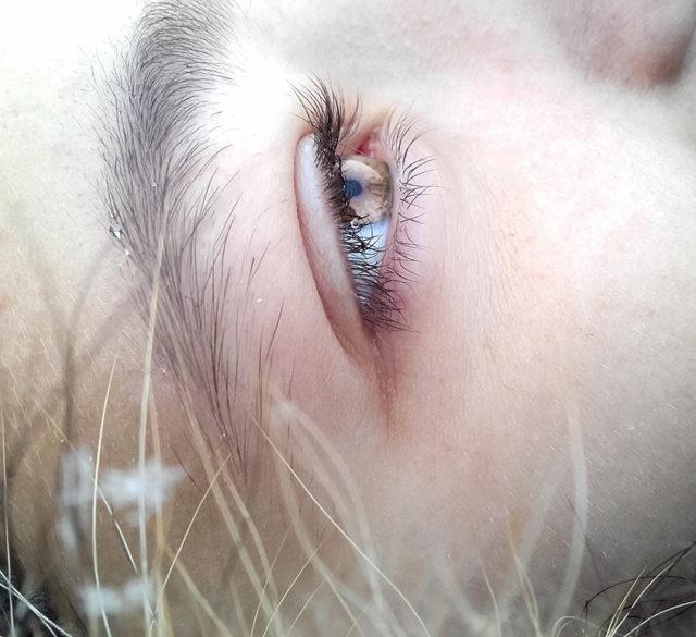 eye twitching remedies