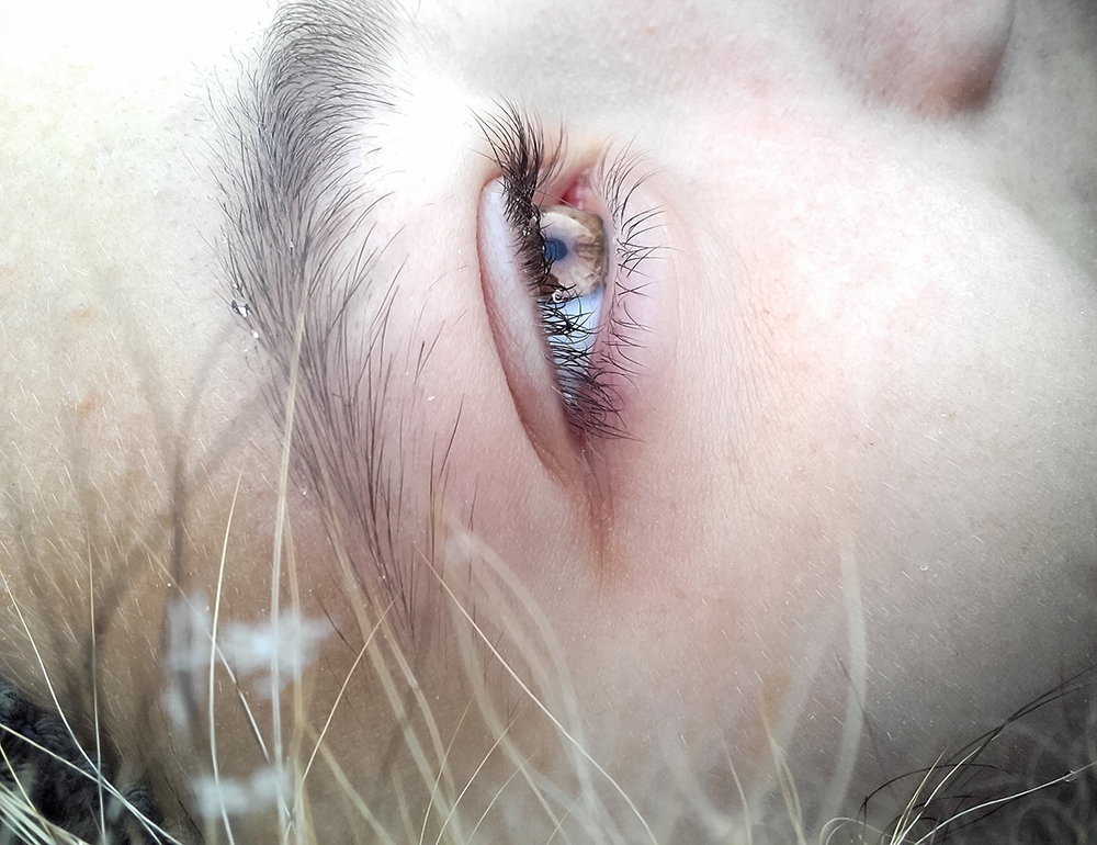 Dry Eyes and What To Do About Them